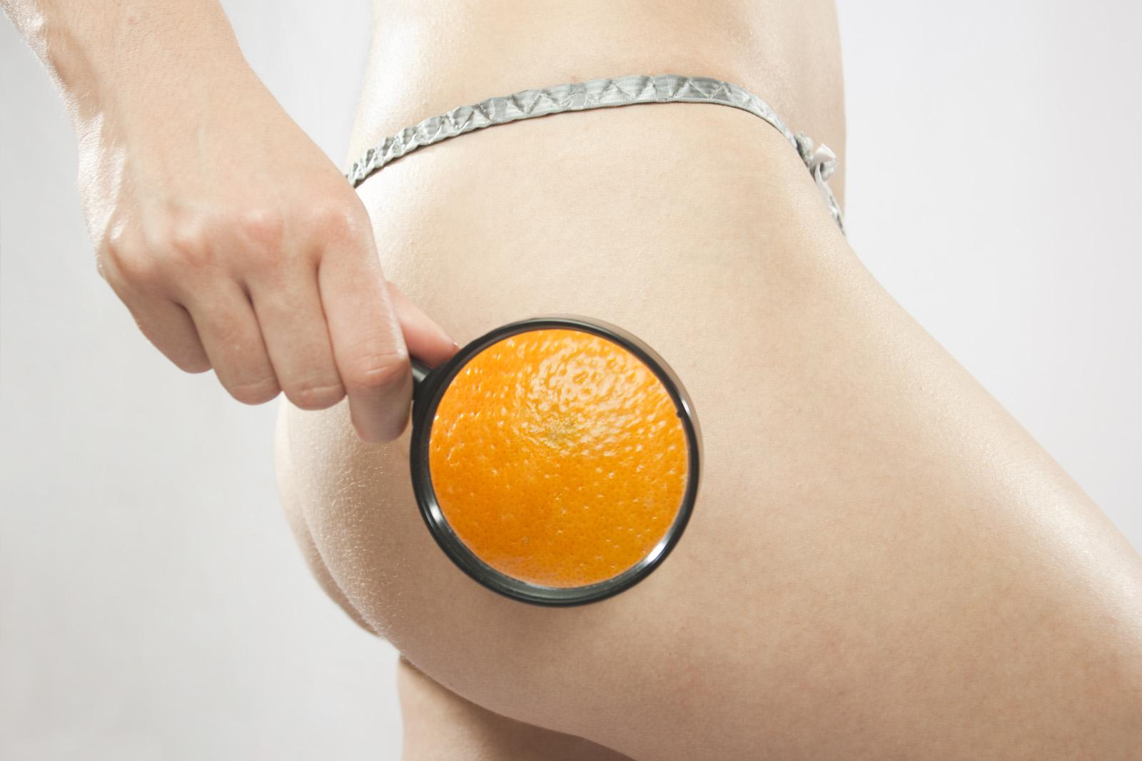 Cellulite – ein Mülldepot des Körpers